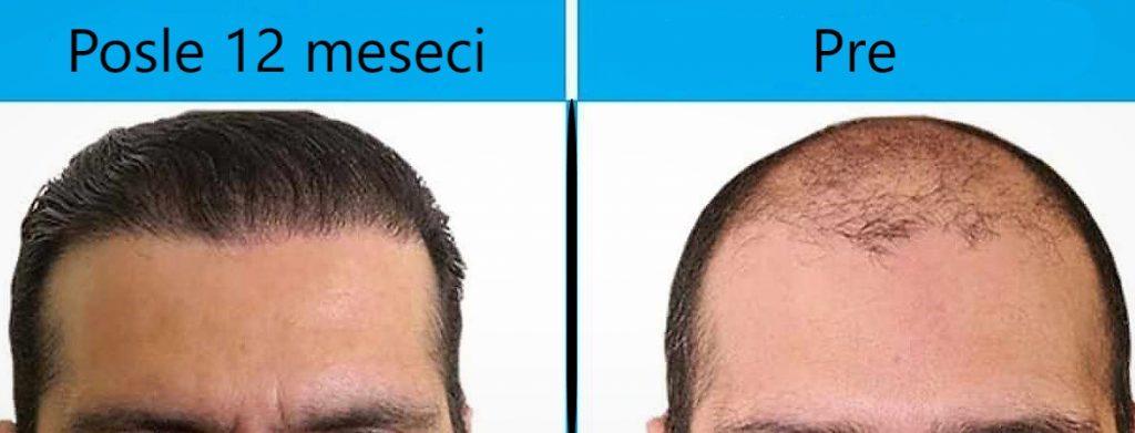 transplantacija kose, presadjivanje kose, opadanje kose, presađivanje kose