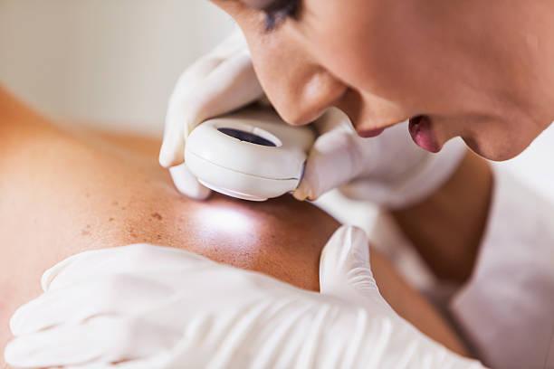 dermatoloski pregled, dermatologija, dermatolog, pregled mladeza